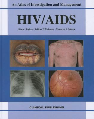 HIV/AIDS: Atlas of Investigation and Management  2011 edition cover