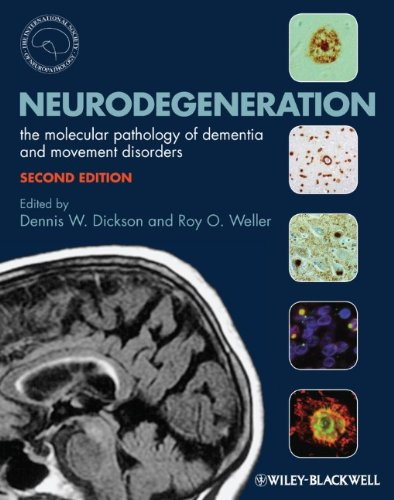 Neurodegeneration The Molecular Pathology of Dementia and Movement Disorders 2nd 2011 9781405196932 Front Cover