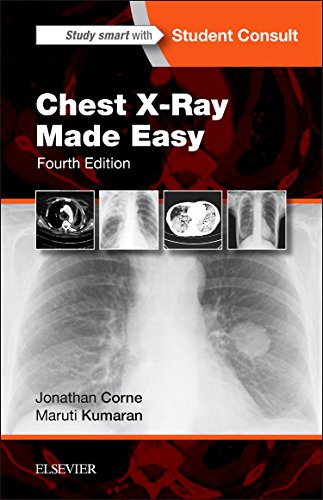Chest X-Ray Made Easy  4th 2016 edition cover