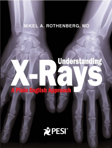Understanding X-rays: A Plain English Approach 1st 1988 edition cover
