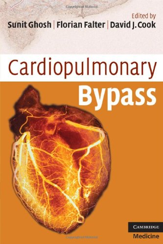 Cardiopulmonary Bypass   2009 9780521721998 Front Cover